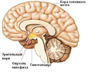 опухоли гипофиза